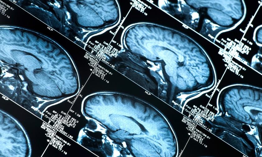 Photo of Pazienti in coma, a Torino un rivoluzionario software cognitivo