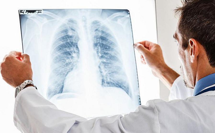 Photo of Malattie polmonari rare e comuni, se ne dibatte a Vercelli sabato 6