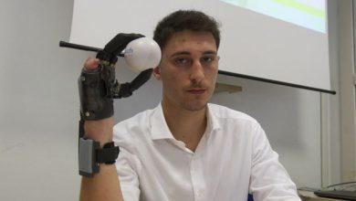 Photo of Perde la mano a causa di un petardo, applicata al Cto protesi bionica