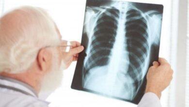 Photo of Dalle Molinette: una semplice ecografia al polmone diagnostica il Covid
